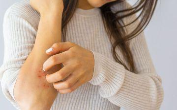 Dermatite seborreica: o que fazer quando a pele é excessivamente oleosa