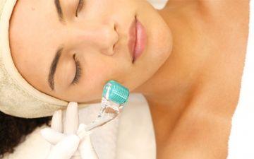 Microagulhamento: como funciona o tratamento com agulhas na pele
