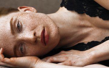 Hiperpigmentação: saiba como prevenir o aparecimento de manchas escuras no rosto