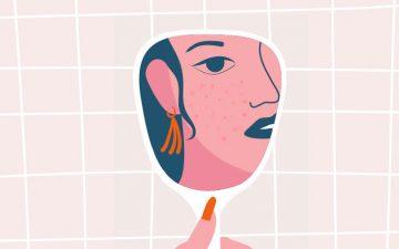 Mas afinal, o que é a acne hormonal? E como tratá-la?